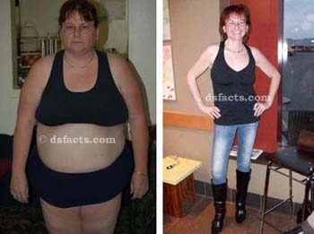 heather before and after